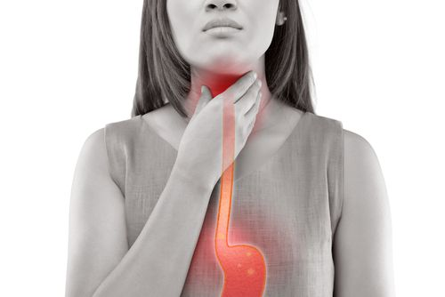 woman showing acid reflux